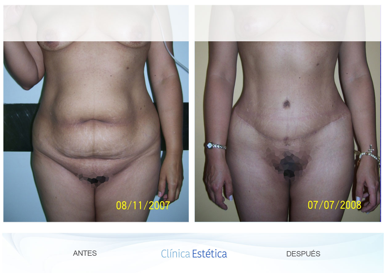 Abdominoplastia en Clinicaestetica.co